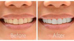 Photoshop-ის საშუალებით ფოტოსურათზე გავათეთრებ კბილებს
