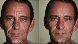 გთავაზობთ Wrinkles -ს (ნაოჭების) მოშორებას Photoshop-ში