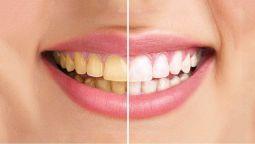 შევასრულებ ფოტოკორექციას: კბილების გათეთრება Photoshop-ით. 3 სურათი მოთითებულ ფასად.