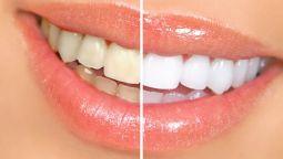 გთავაზობთ ფოტომანიპულაციას: კბილების გათეთრება
